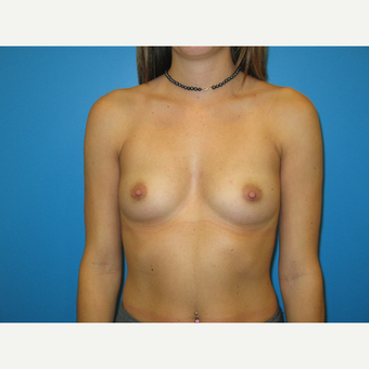 25-34 year old woman treated with Breast Implants before 2907305