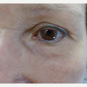 Eye rejuvenation with laser resurfacing- part 2 after 2241589