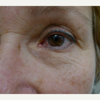 Eye rejuvenation with laser resurfacing- part 2 before 2241589