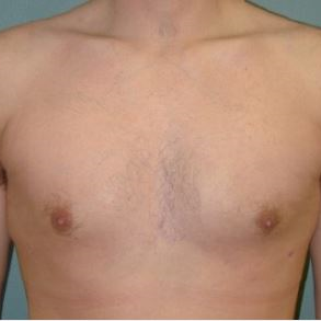 35-44 year old man treated with Male Breast Reduction after 3239616