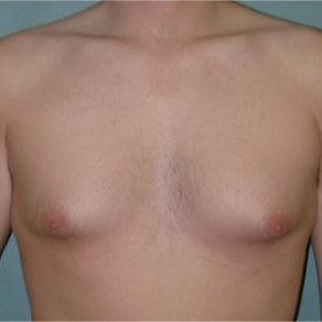 35-44 year old man treated with Male Breast Reduction before 3239616