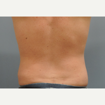 35-44 year old man treated with Vaser Liposuction after 3448695