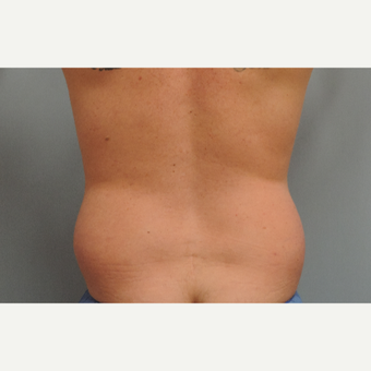 35-44 year old man treated with Vaser Liposuction before 3448695