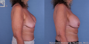 45-54 year old woman treated with Breast Implant Revision after 3767647