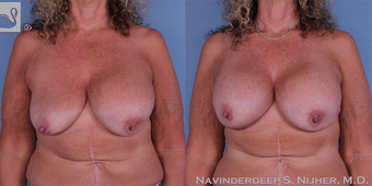 45-54 year old woman treated with Breast Implant Revision before 3767647