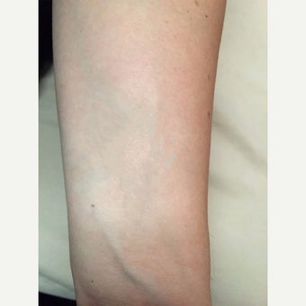 35-44 year old woman treated with Tattoo Removal after 2565137