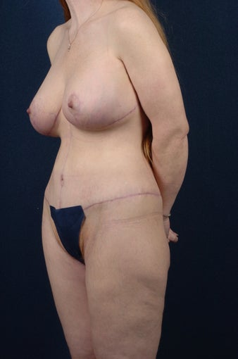 47 Year Old Female - Lower Body Lift after 979246