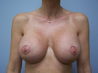 Breast Augmentation and Breast Lift (Mastopexy) after 532131