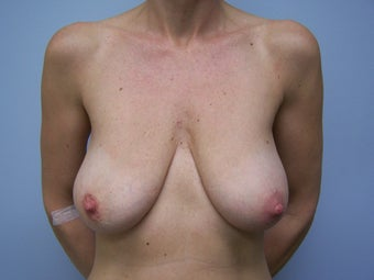 Breast Augmentation and Breast Lift (Mastopexy) before 532131