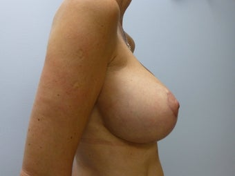 Breast Augmentation and Breast Lift (Mastopexy) 532131