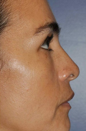 Lower lid blepharoplasty with fat grafting  after 875999