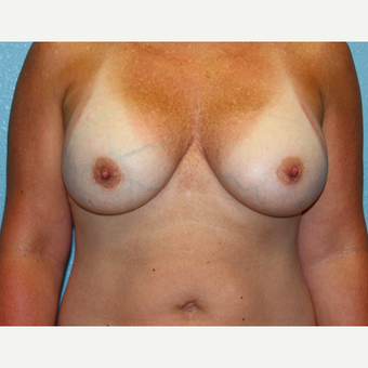 35-44 year old woman treated with Breast Augmentation after 3215188