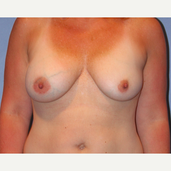 35-44 year old woman treated with Breast Augmentation before 3215188