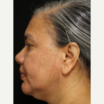 45-54 year old woman treated with Cosmelan