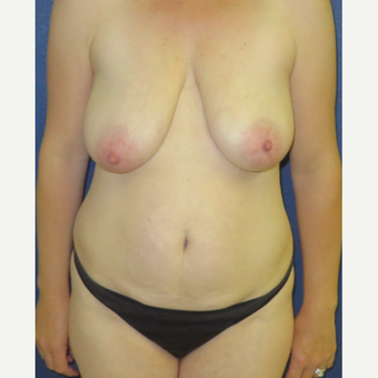 35-44 year old woman treated with Mommy Makeover before 3139895