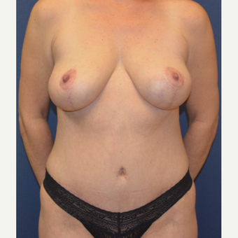 35-44 year old woman treated with Mommy Makeover after 3139895
