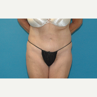 57 year old woman treated with Tummy Tuck after 3245850