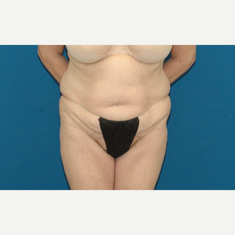 57 year old woman treated with Tummy Tuck before 3245850
