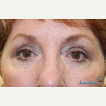 65-74 year old woman treated with Eyelid Surgery after 3139969
