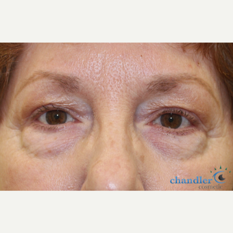 65-74 year old woman treated with Eyelid Surgery before 3139969