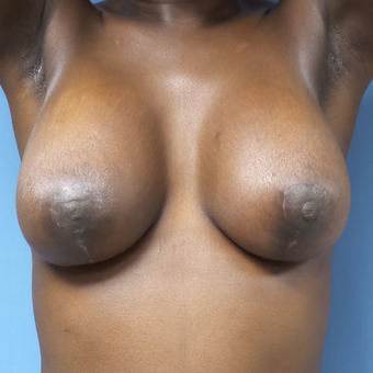 25-34 year old woman treated with Breast Lift with Implants after 3180239