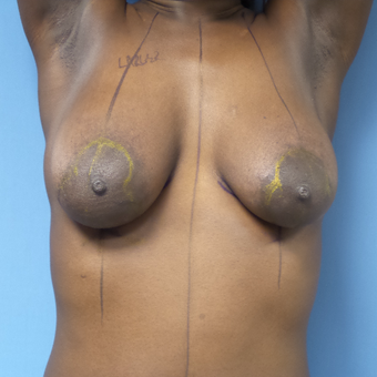 25-34 year old woman treated with Breast Lift with Implants before 3180239