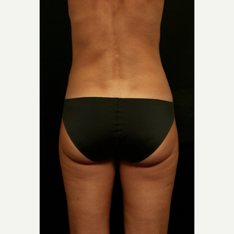 35-44 year old woman treated with Liposuction after 3099439