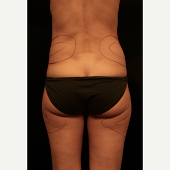 35-44 year old woman treated with Liposuction before 3099439