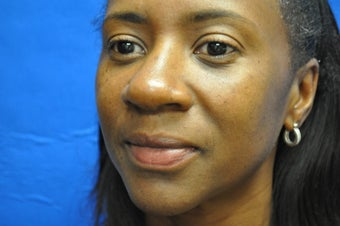African American female Rhinoplasty before 1039686