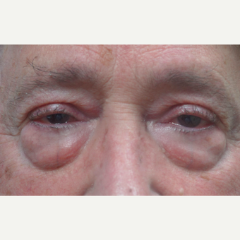 65-74 year old man treated with Eye Bags Treatment before 2721702
