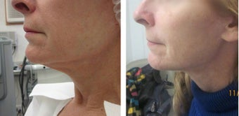 45-54 year old woman treated with Ultherapy before 2697840