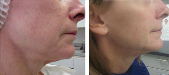45-54 year old woman treated with Ultherapy after 2697840