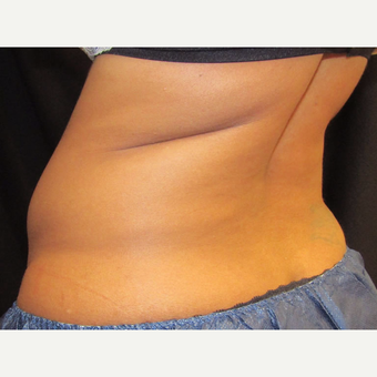 41 yr old woman treated with CoolSculpting on the flanks. before 3349667