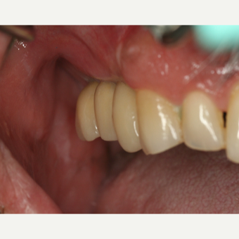 45-54 year old man treated with Dental Implants after 3541518