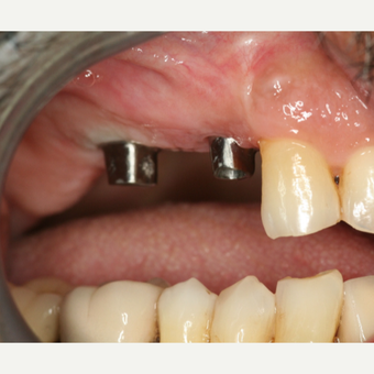 45-54 year old man treated with Dental Implants before 3541518