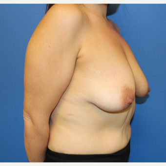 25-34 year old woman treated with Breast Lift with Implants before 3459366