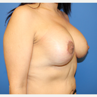 25-34 year old woman treated with Breast Lift with Implants after 3459366