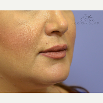 35-44 year old woman treated with Injectable Fillers after 3421875