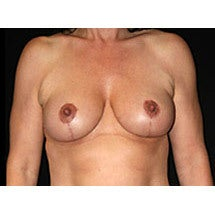 Breast Lift  after 662463