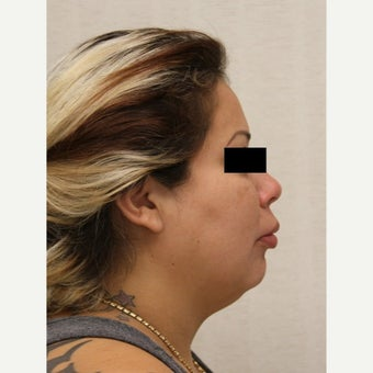 35-44 year old woman treated with Neck Lift before 1570575