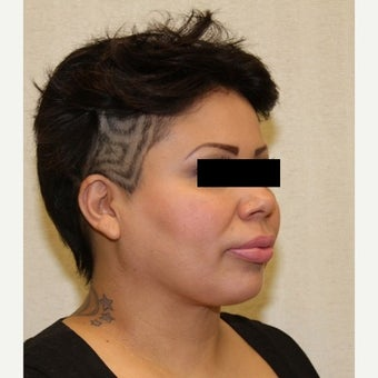 35-44 year old woman treated with Neck Lift 1570575