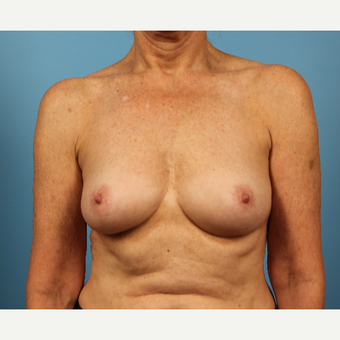 45-54 year old woman treated with Breast Augmentation before 3348351