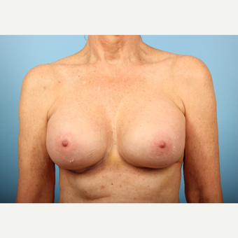 45-54 year old woman treated with Breast Augmentation after 3348351