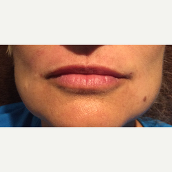 45-54 year old woman treated with Restylane Silk after 3466529