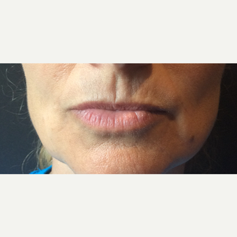 45-54 year old woman treated with Restylane Silk before 3466529