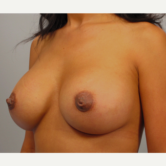 35-44 year old woman treated with Breast Lift with Implants after 3423420