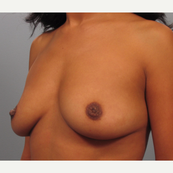 35-44 year old woman treated with Breast Lift with Implants before 3423420