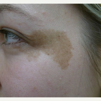 Brown birthmark removal