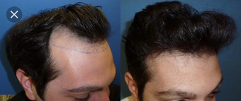 35-44 year old man treated with FUE Hair Transplant before 3745494