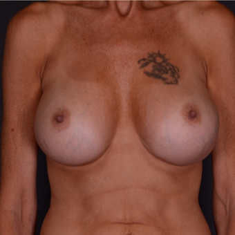 45-54 year old woman treated with Breast Implant Revision after 3738161